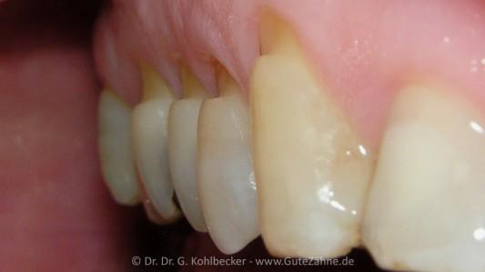 Kaputtgeschrubberte Zahnhälse