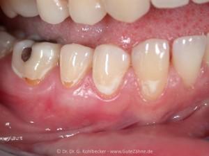 Karies: Loch im Zahn