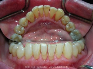 Nach professioneller Zahnreinigung