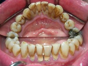 Vor professioneller Zahnreinigung