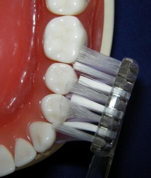 Zahnbürste mit guter Borstenanordnung
