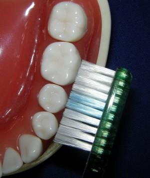 Zahnbürste mit ungünstiger Borstenanordnung